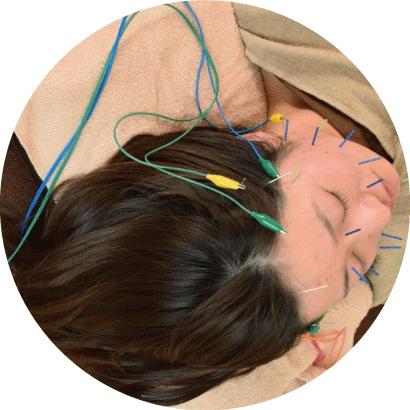 頭痛の改善に自信があります